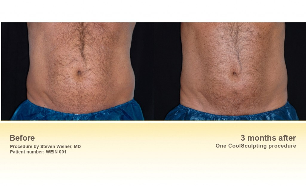 Stomach before and after coolsculpting treatment