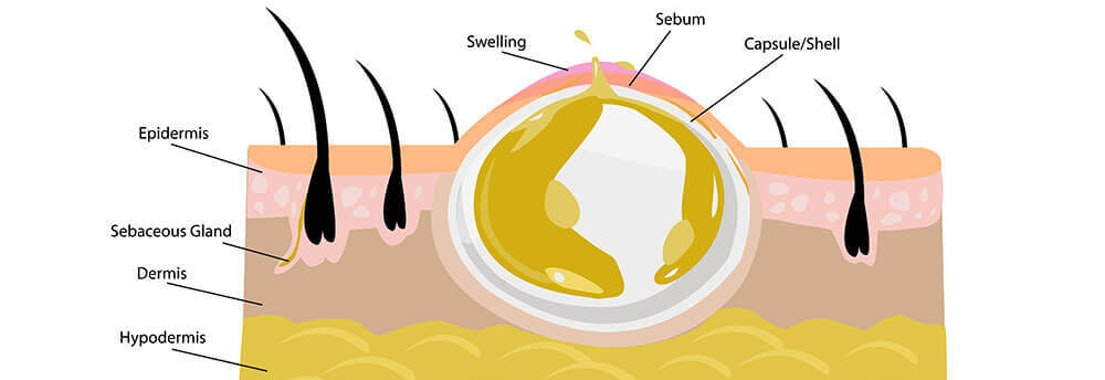Diagram of sebaceous cyst on skin 3 Ways To Combat Sebaceous Cysts