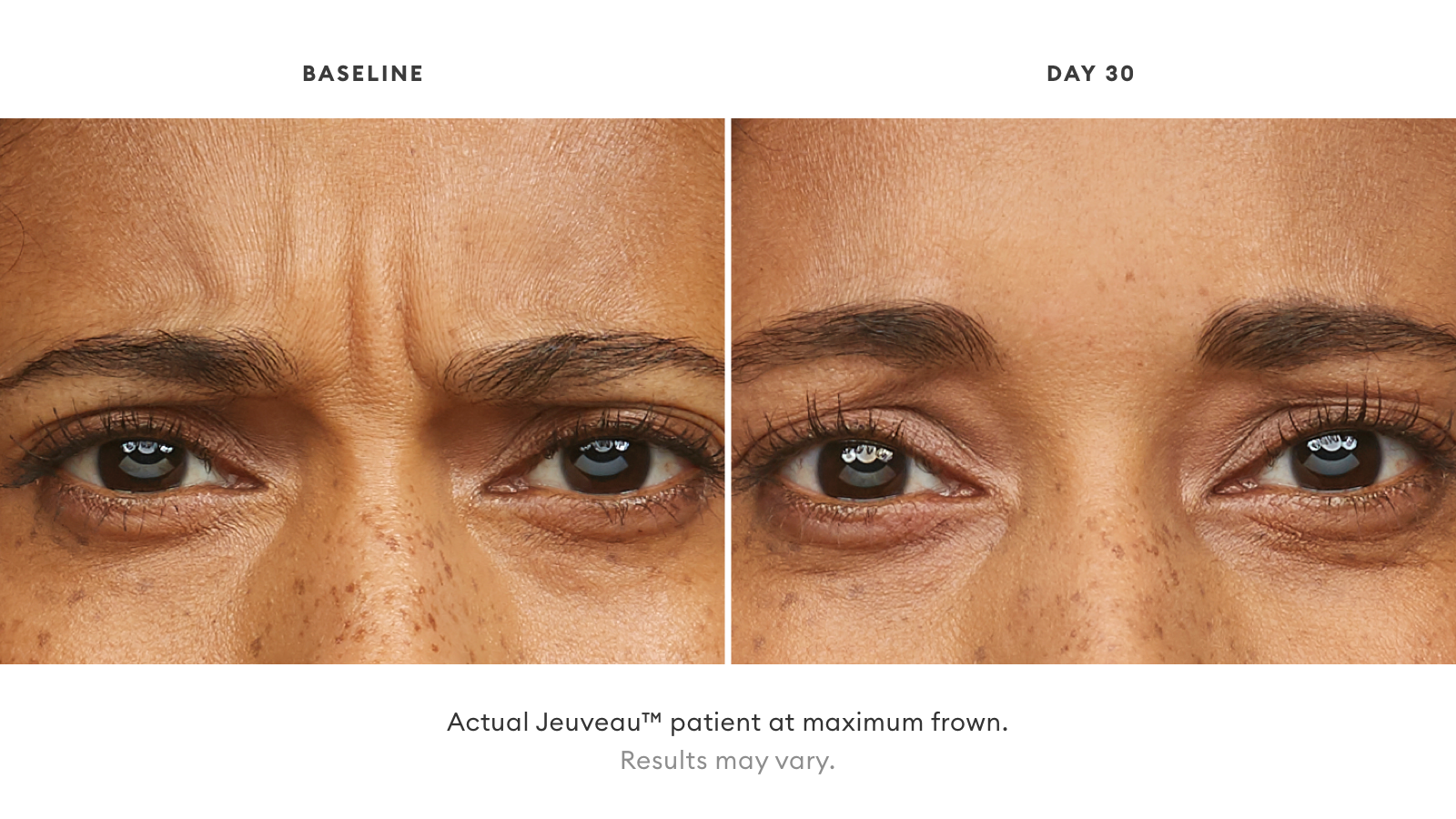 Jeuveau patient close of up eyes before and after 30 days