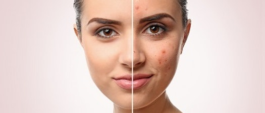 3 Steps To Prevent Adult Acne