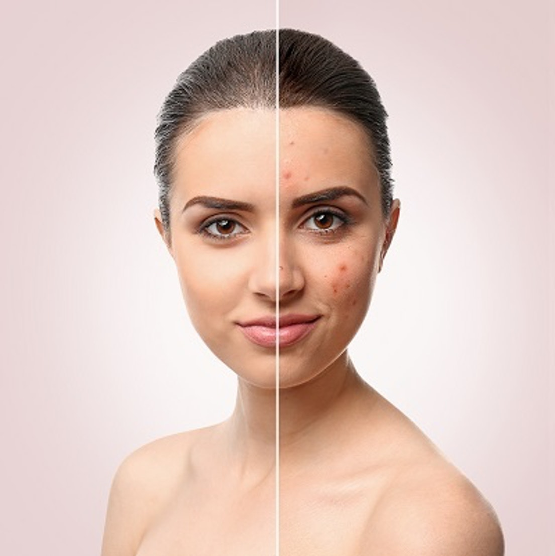 Woman with adult acne 3 Steps To Prevent Adult Acne