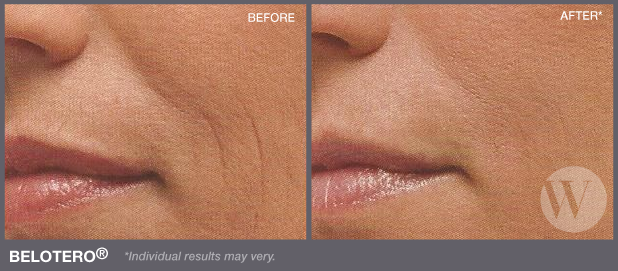 Woman's face before and after Belotero
