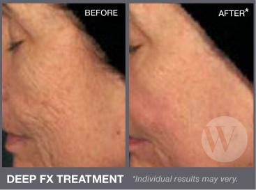 Close up of a woman's face before and after deep FX treatment