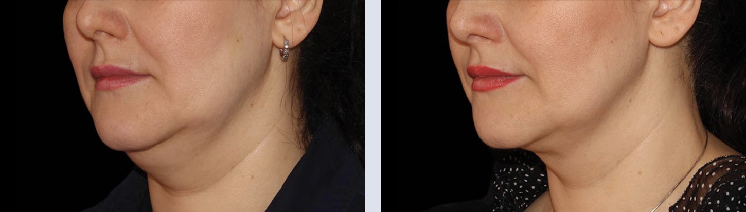 Close up of a woman's chin before and after CoolSculpting