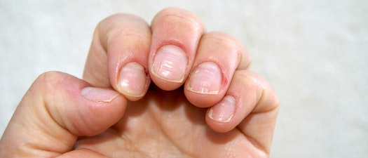 6 Common Nail Abnormalities and How to Treat Them