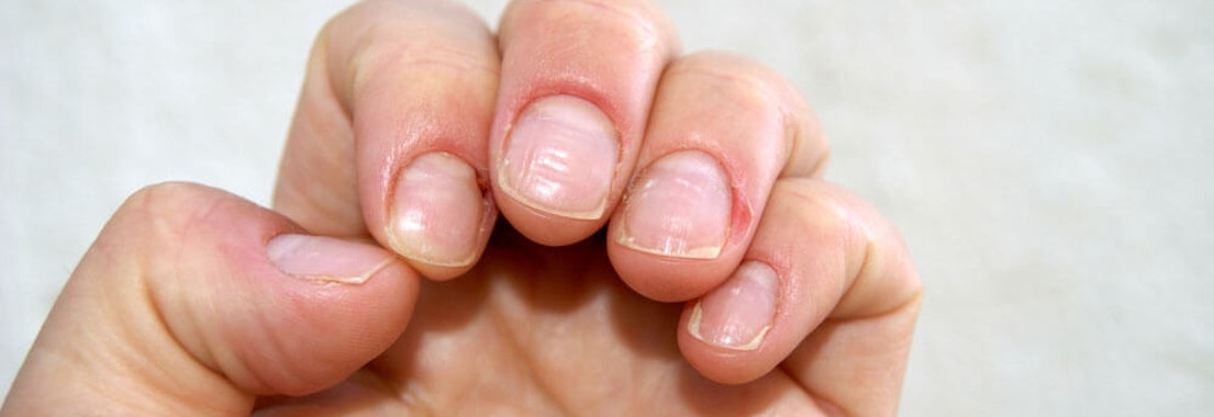 Abnormal fingernails 6 Common Nail Abnormalities and How to Treat Them