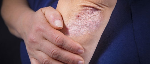 How to Find the Best Treatment for Your Psoriasis
