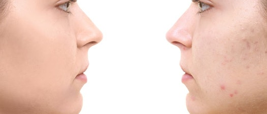 Before and after Dermaplaning treatment Acne as a Teen? Try Dermaplaning