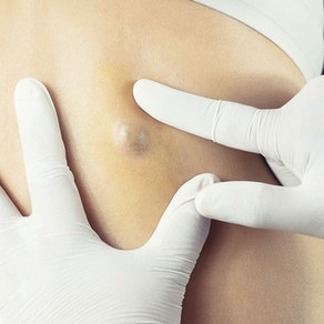 Identifying and Treating Acne and Sebaceous Cysts