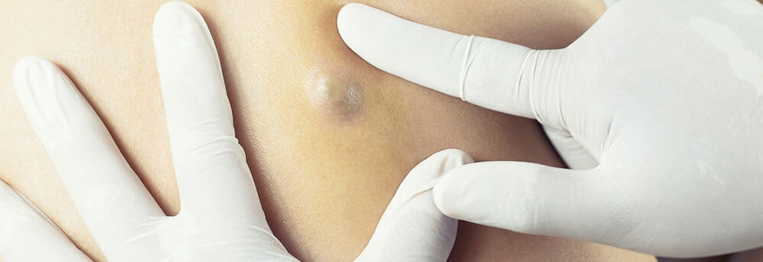Identifying And Treating Acne And Sebaceous Cysts Dermatology Mohs