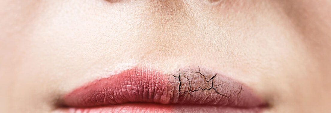 Woman with cracked and chapped lips Avoid Dry, Chapped Lips With These 4 Tips