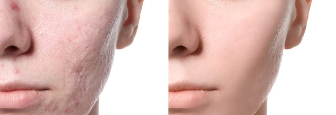 Before and after image of acne Be Confident at Your Holiday Party with These Acne Treatments