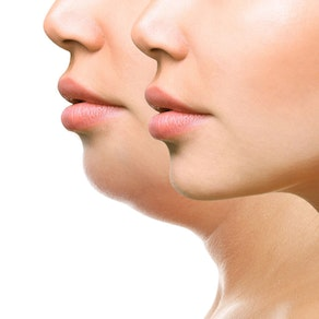 Reducing Double Chins: The Top 2 Treatments