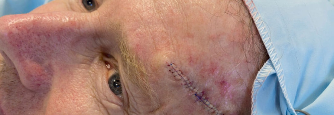 How Mohs Micrographic Surgery Treats Skin Cancer