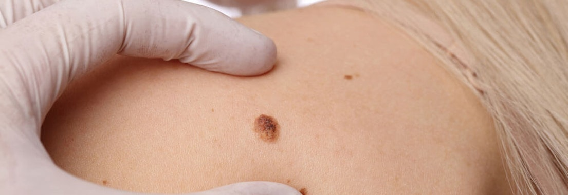 When Should I Seek a Doctor's Opinion About My Mole?