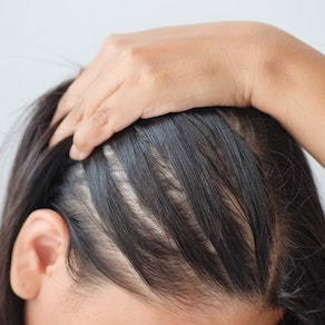 Woman looking at her scalp Female Hair Loss? We Can Help!