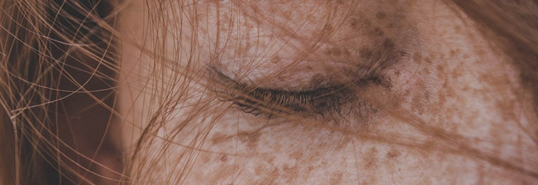 Dermatology MOHS Institute freckle skin treatment Forget About Freckles: Treatment Options