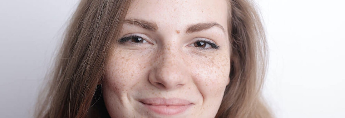 Dermatology MOHS Institute melasma treatment Say Goodbye to Melasma and Brown Spots with These Treatment Options