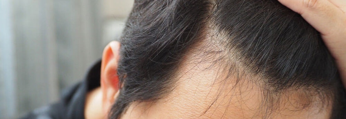 Dermatology MOHS Institute hair loss treatment Beware of Hair Loss Product and Treatment Scams