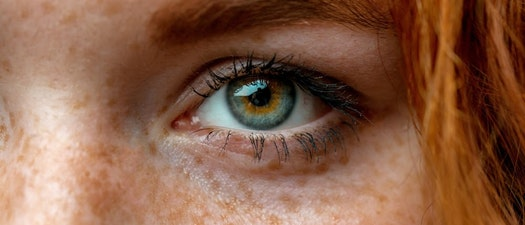 Close up of a woman with freckles How to Know If You're High Risk for Skin Cancer