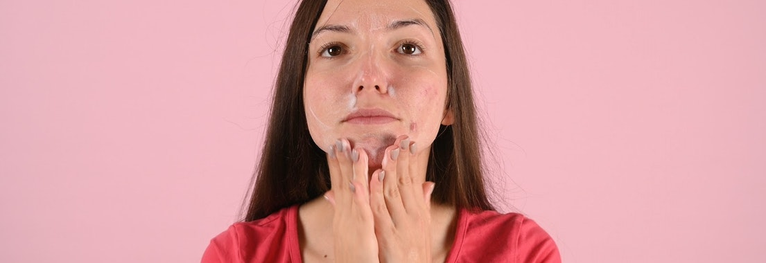 Woman applying treatment to adult acne I'm Not a Teenager. How Am I Still Getting Acne?