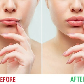 Before and after of woman with dermal fillers If I Get Fillers, Will it Look Natural?