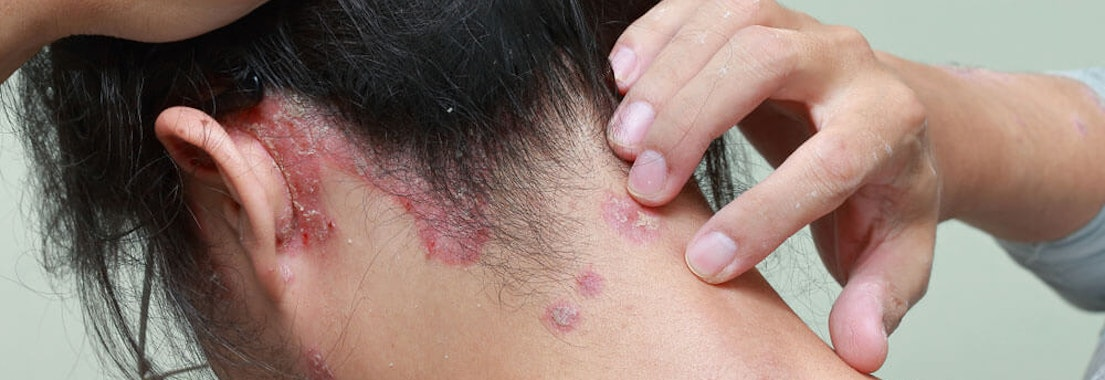 Dermatology MOHS Institute scalp lesion treatment Need a Lesion Removed from Your Scalp? Consider Mohs Surgery