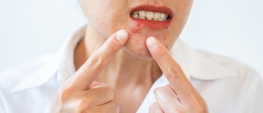 How You Can Live a Normal Life with Herpes