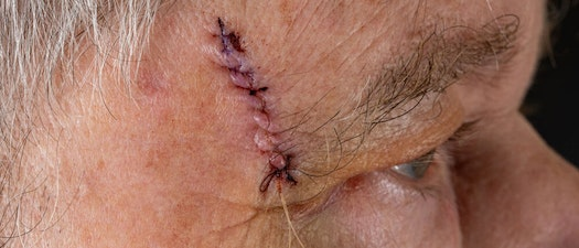 Comparing Mohs to Other Surgical Dermatology Options
