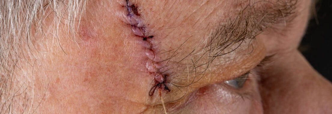 Man's face with stitches Comparing Mohs to Other Surgical Dermatology Options