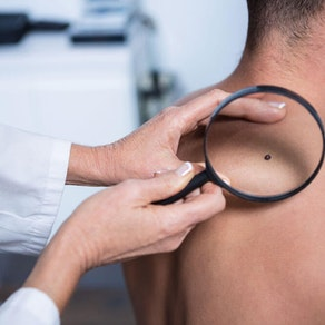 5 Changes in Moles Dermatologists Look For