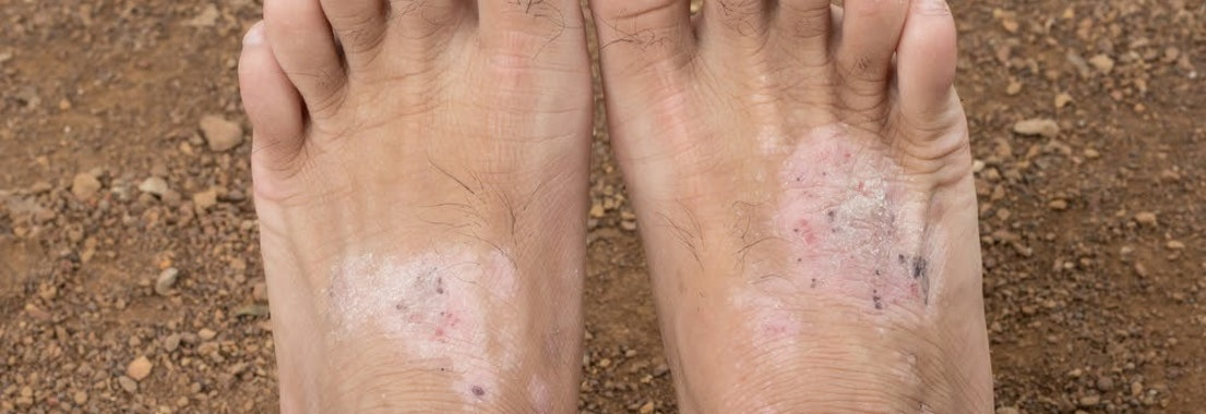 Fungal infection on a man's foot Here Are the Top Most Common Fungal Infections
