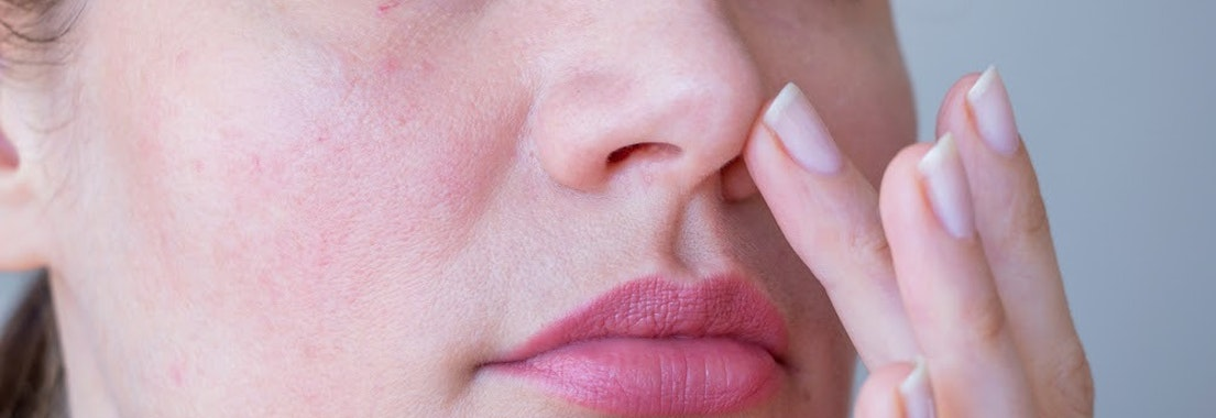 Woman applying treatment to rosacea How to Protect My Skin with Rosacea in the Summer