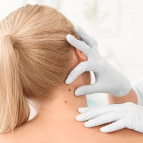 Doctor looking at a patient's mole How to Reduce Your Risk of Actinic Keratosis and Skin Cancer