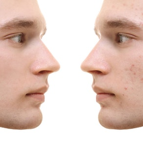 How to Reduce Acne and Restore Confidence with Cosmetic Treatments