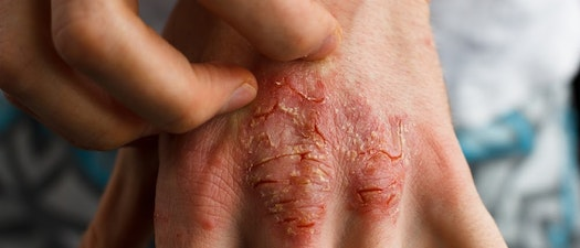 From Severe to Mild Psoriasis, We Can Help You