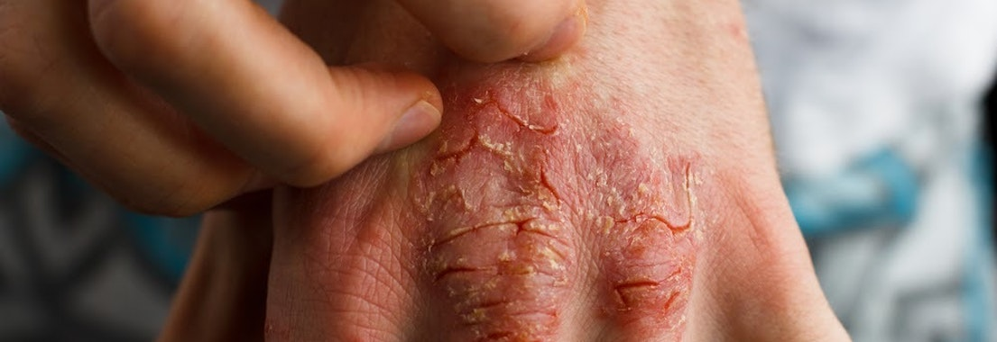 Psoriasis on someone's hand From Severe to Mild Psoriasis, We Can Help You