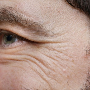 Woman with Crow's Feet Seeing Signs of Crow's Feet? How to Stop Them Now