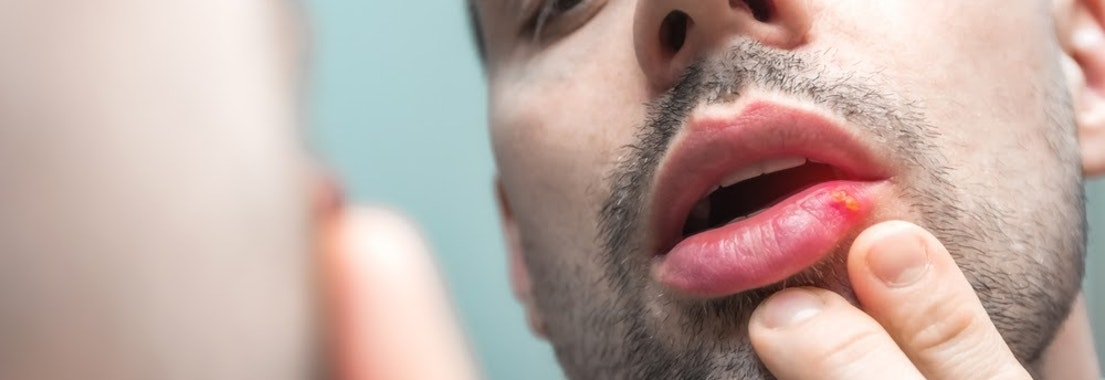 Man looking at herpes on his lip Steps to Take when Having a Herpes Outbreak