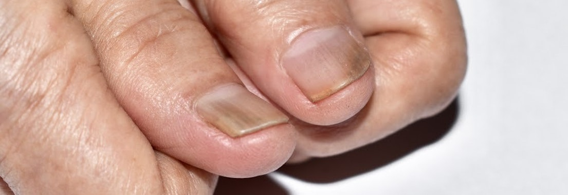 Abnormal finger nails Here's Why You May Be Suffering from Nail Abnormalities