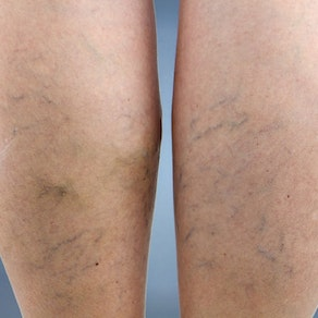 Woman with spider veins on her legs How to Treat Spider Veins Before Swimsuit Season