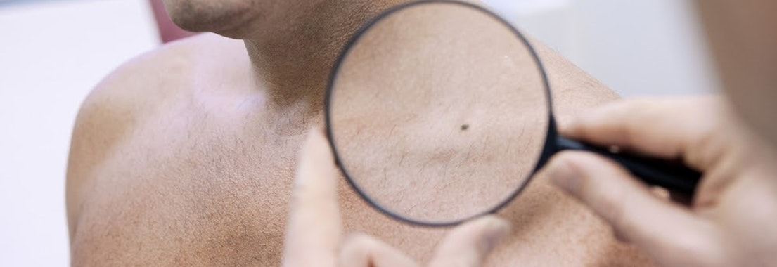 Dermatologist looking for skin cancer What Areas of the Body Are Most Prone to Skin Cancer?