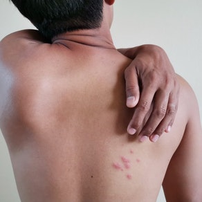 Man with shingles on his back What Shingles Can Do to Mature Generations