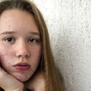Girl with acne on her face Why Acne Can Worsen in the Summer