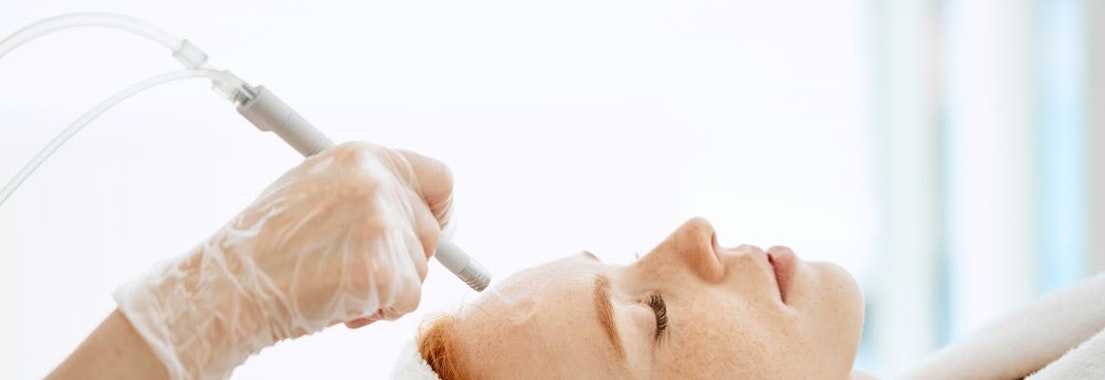 Woman having chemical peel skin treatment Why Chemical Peels Are Safe and Recommended in the Winter