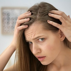 It's Not the Holiday Stress, You May Have Alopecia. See How We Can Help