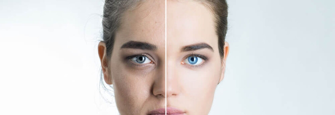 The 4 Best Ways to Smooth Facial Wrinkles and Lines