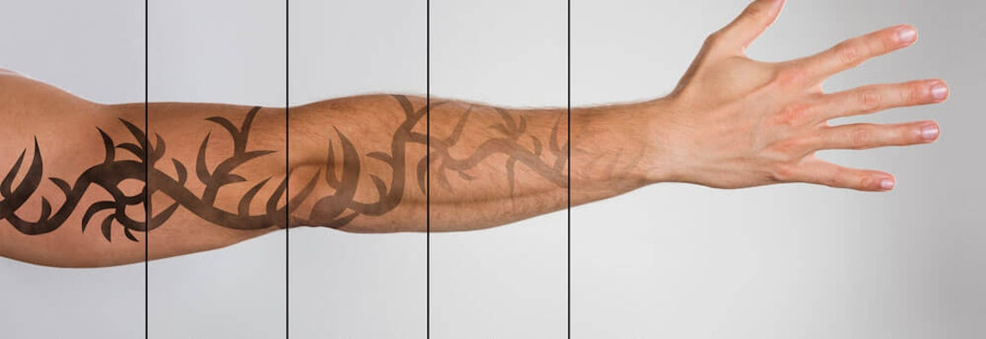 Laser Tattoo Removal: Your Dermatologist Has Options