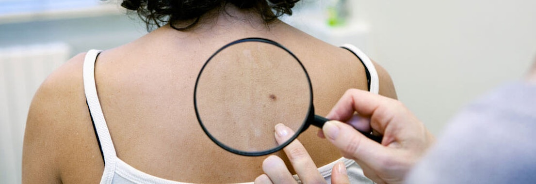 Doctor examining patient's neck Why Skin Cancer Screenings are Key to Early Detection