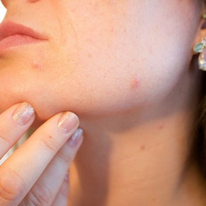 Why Light-Based Therapy Will Be Your Most Successful Acne Laser Treatment